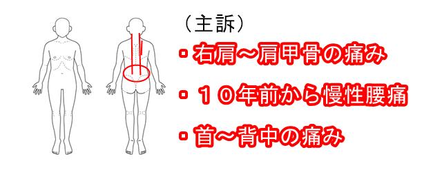 甲骨 右 の 痛み 肩 ゴルフ肩・右肩の痛みの原因と治療例 新宿で整体なら代々木あおいカイロプラクティック